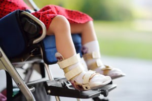 A little girl with cerebral palsy rests her legs in a wheelchair